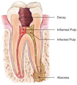 Infected-tooth-270x300.jpg