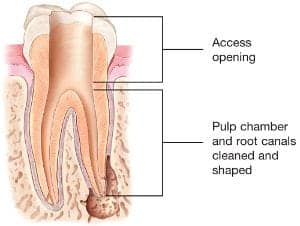 Root Canal Explained | American Association of Endodontists